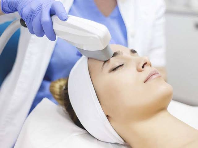 A person may get treatment with IPL to remove unwanted hairs.