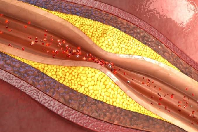 Atherosclerosis is the accumulation of plaque on the inside of blood vessel walls.