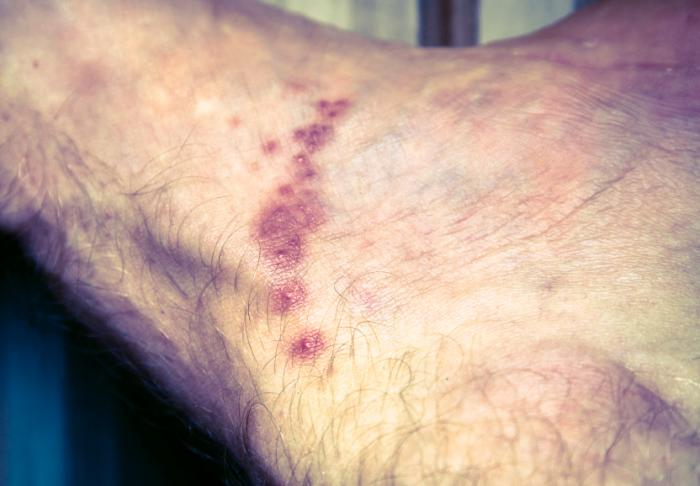Scabies causes a itchy skin rash that consists of small red bumps and blisters.