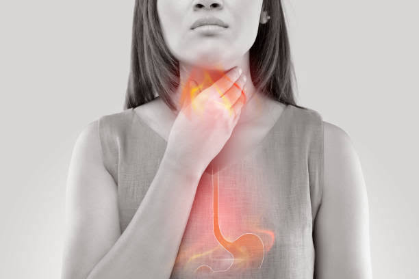 Acid reflux causes stomach acid to travel up the food pipe into the mouth.