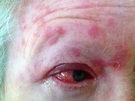 Nccmed-a-woman-with-shingles-on-her-face-image-credit-burntfingers-2015.jpg