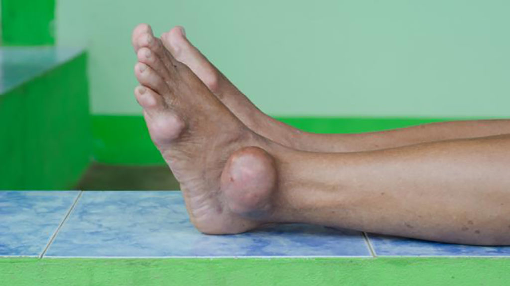 Gout can cause severe swelling and pain.
