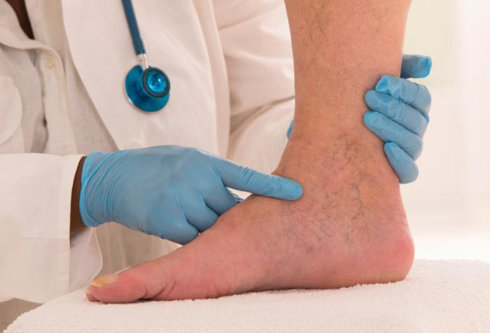 Swelling foot