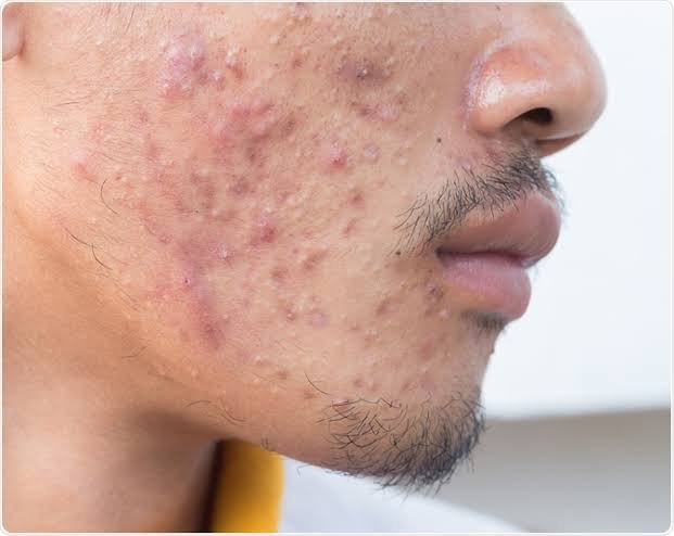 A man with acne condition