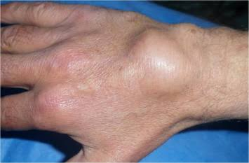 A cyst is a sac of tissue that can form anywhere on the body.