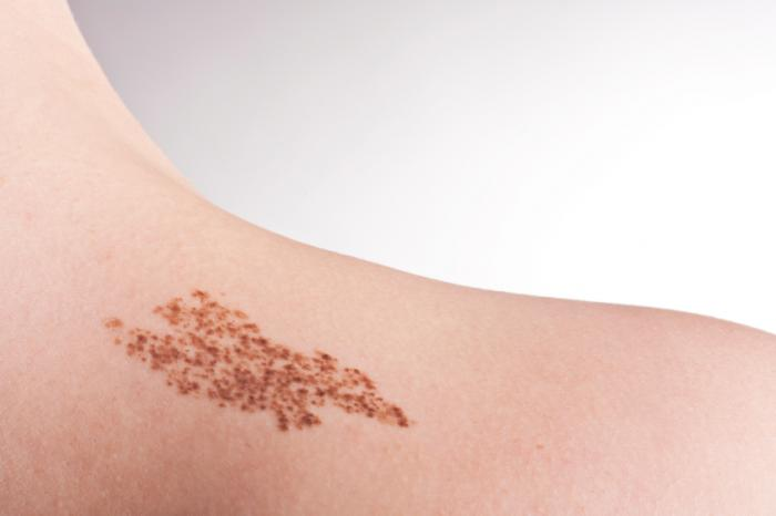 Birthmarks and freckles are a common sign of Nf1.