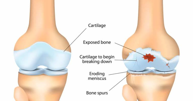 Osteoarthritis is caused by a reduction in the normal amount of cartilage tissue through wear and tear throughout life.