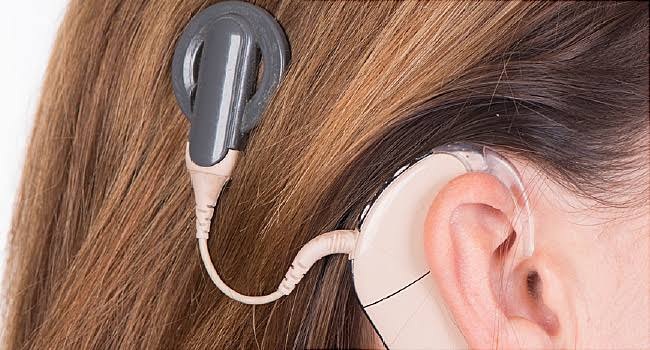 A lady under cochlear implant