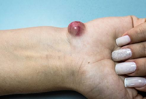Cysts can affect any part of the body.