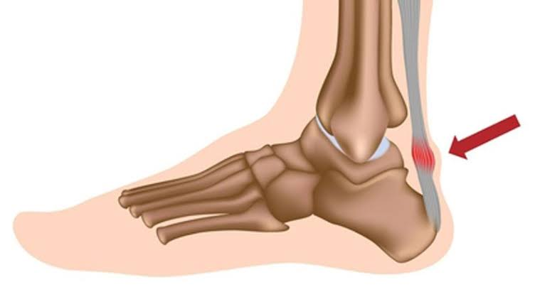The Achilles tendon runs down the back of the lower leg.