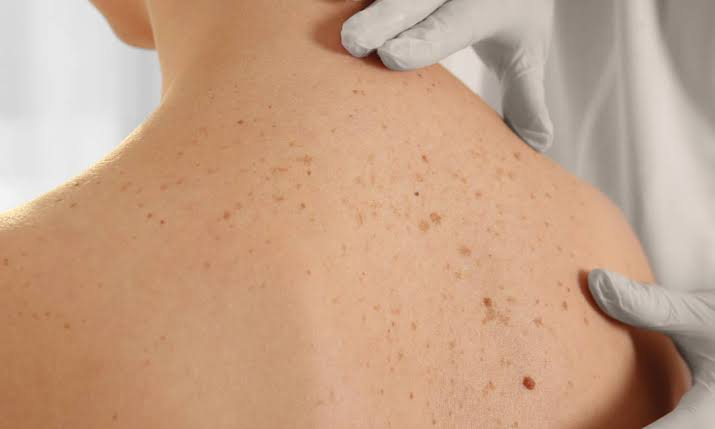 Age spots may appear on skin frequently exposed to the sun