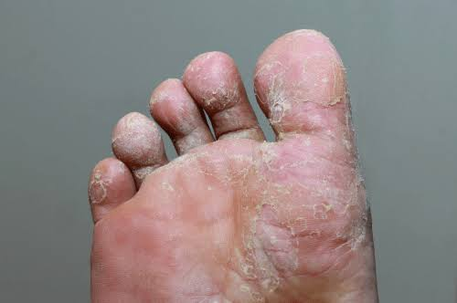 Athlete's foot can be treated with tea tree oil.