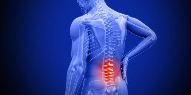 Causes of back pain.