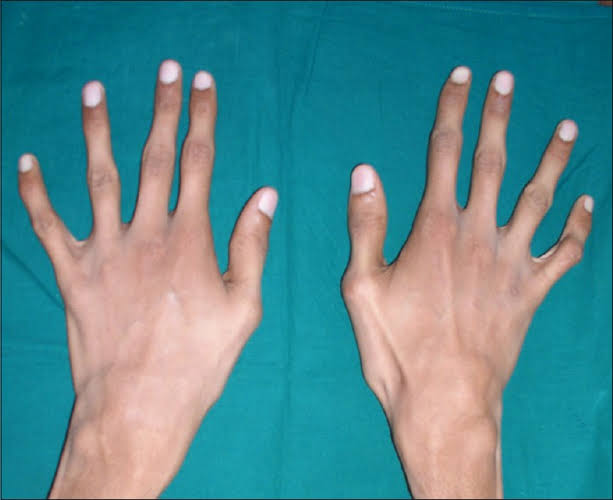 People with Marfan syndrome often have elongated fingers and hands.