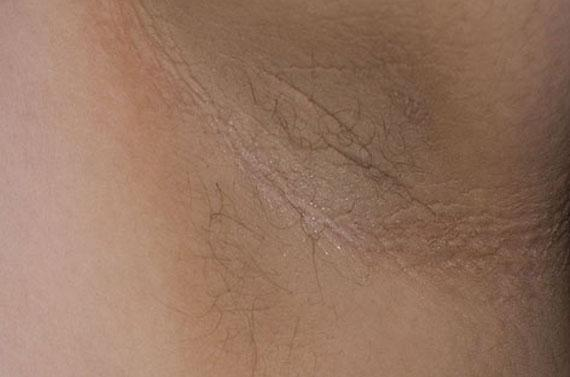 Risk factors for acanthosis nigricans include obesity and diabetes. Image credit: Madhero88, 2010