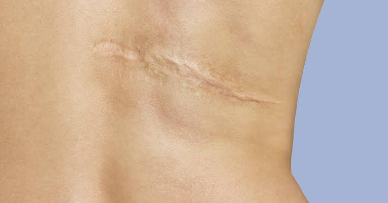 Laser treatment can make a person's scar less noticeable.