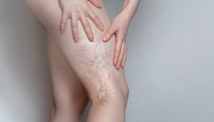 A person with DVT may experience pain and swelling in the affected limb.