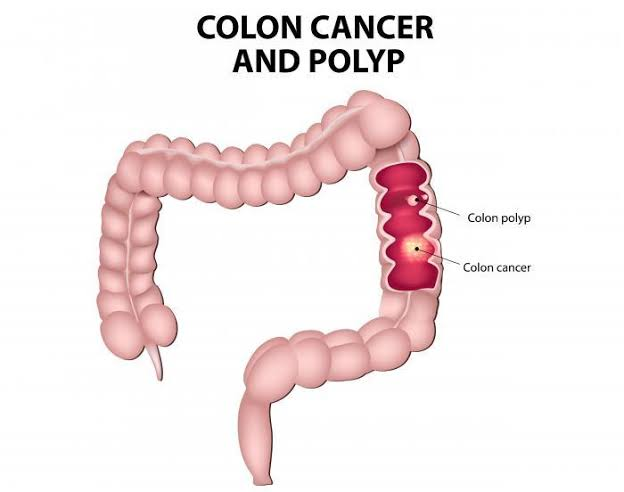 Colon cancer and polyp