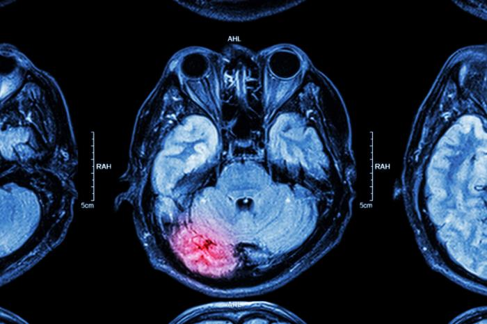 Swelling of the brain within the skull can put undue pressure on the surrounding tissues.
