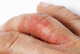 A person may experience psoriatic arthritis in the hands, feet, ribs, or elbows.