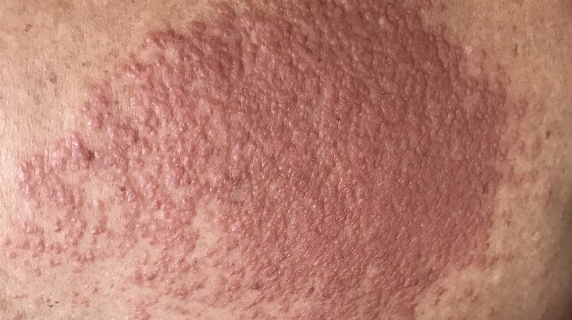 Contact dermatitis Image credit: TisforThan / Shutterstock