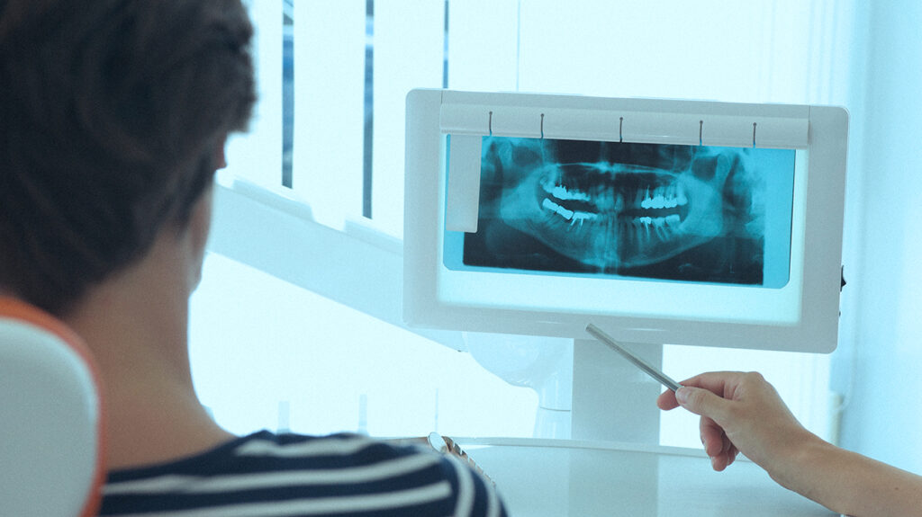 While dental implants can be beneficial, surgery can pose a risk.