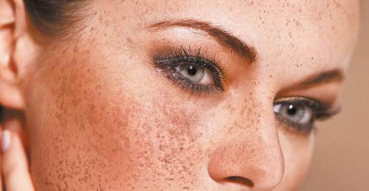 Dark spots are common on the face, shoulders, and back of the hands.