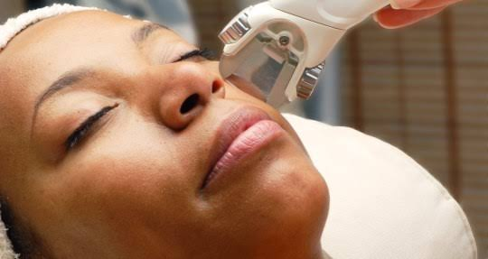 Laser treatment can remove dark spots on the skin.