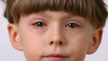 eye discharge in toddlers