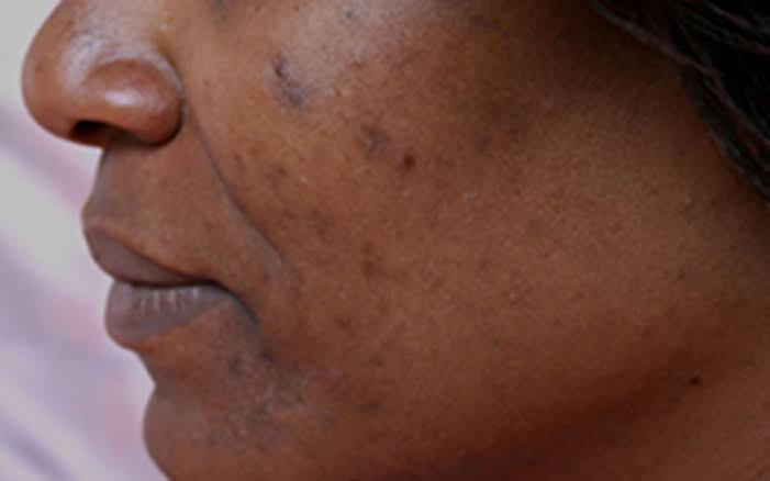 Acne can cause dark spots and scarring.