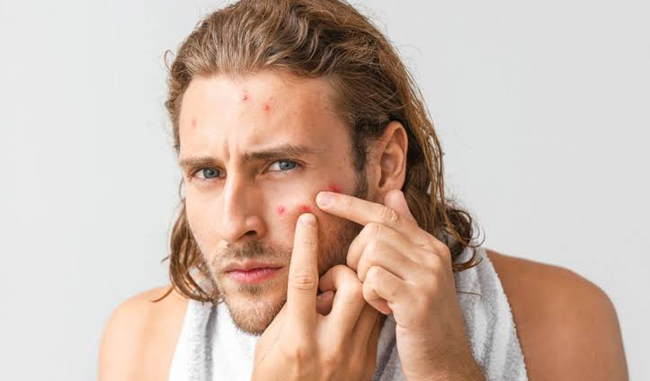 Popping a pimple may cause it to become infected.
