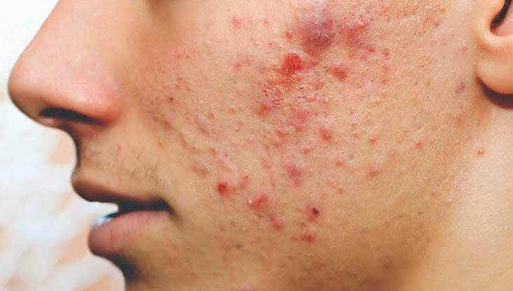 Red pimples