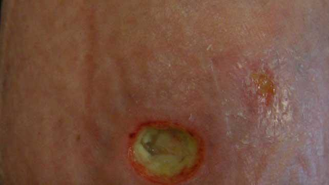 Ulcer on the skin