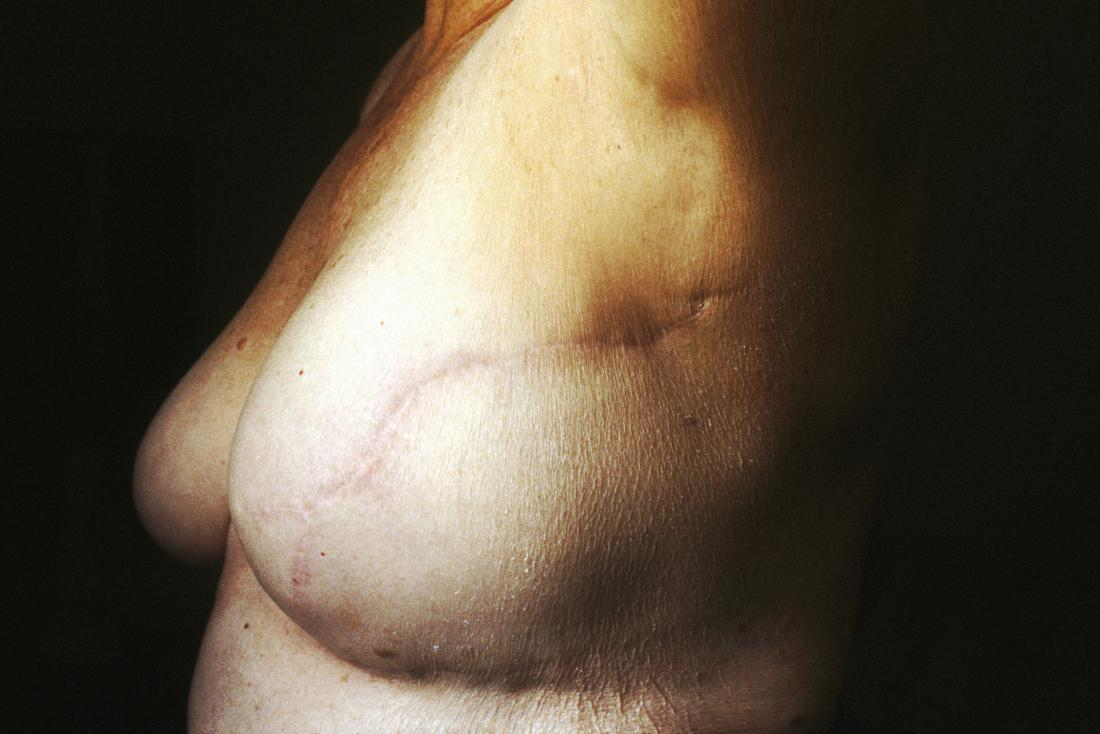 the-side-view-of-nude-breasts-only-indicating-breast-reconstruction-post-mastectomy-image-credit-national-cancer-institute-2013