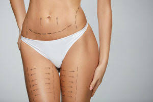 After the liposuction operation