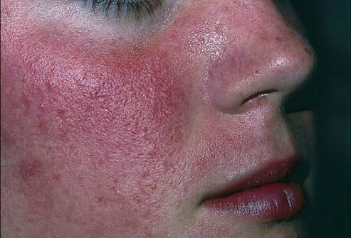 Rosacea on a lady's face