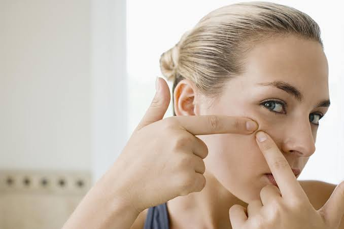 Avoid picking or touching Acne