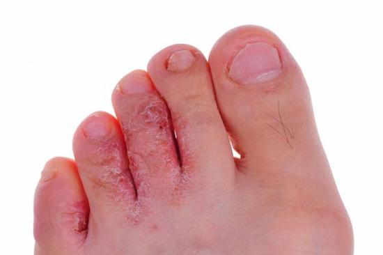 athlete-s-foot-all-toes