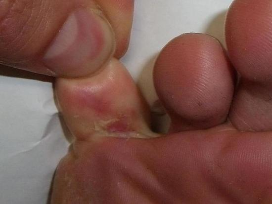 athlete-s-foot-lesion-little-to